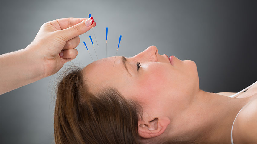 acupuncture-service